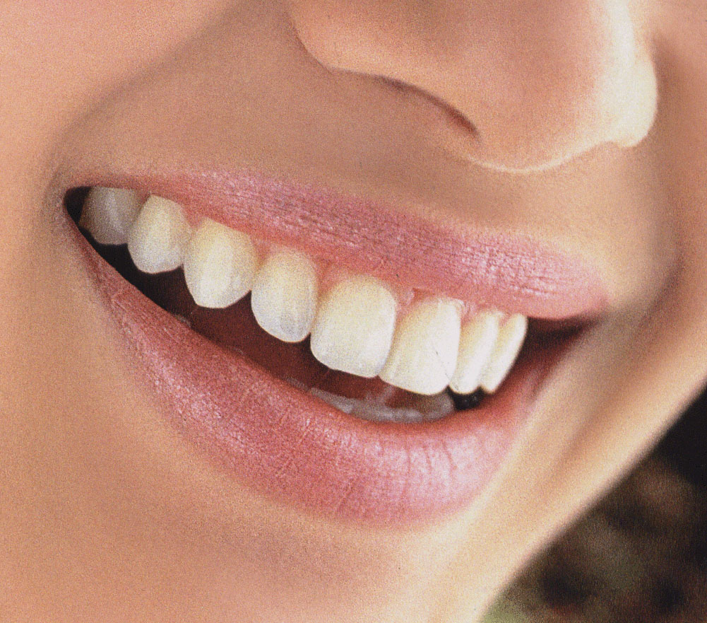 invisalign - Dentist Florence and Canon City Colorado