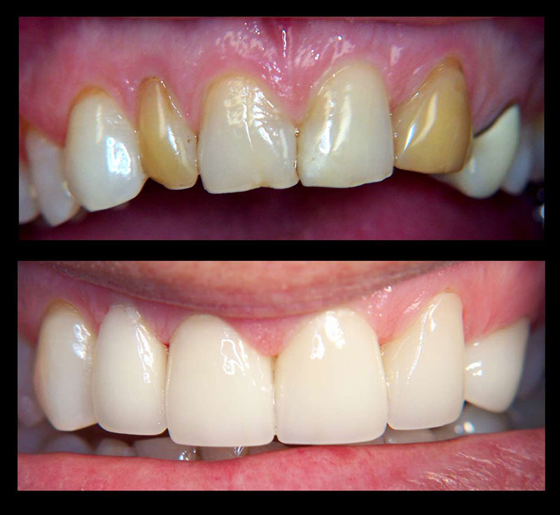 veneers - Dentist Florence and Canon City Colorado